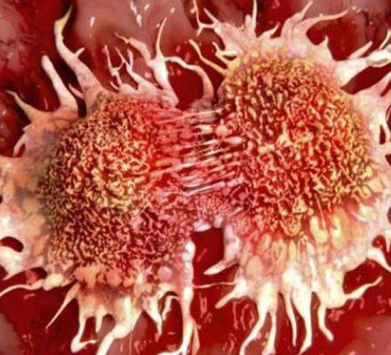 La inmunoterapia es clave en los fármacos para el cáncer